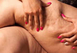 3 Suggerimenti sicuri per ridurre la cellulite