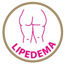 Informazioni utili sul Lipedema